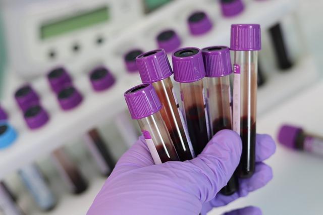 Blodprøveglass. Blodprøver er alltid en viktig del av en fertilitetsutredning